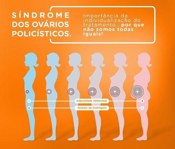 sindrome ovarios poli
